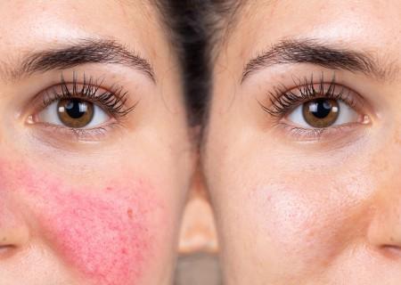 Traitement des veines et taches sur la peau - Clinique esthétique à Javea